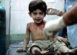 wounded Lebanese boy